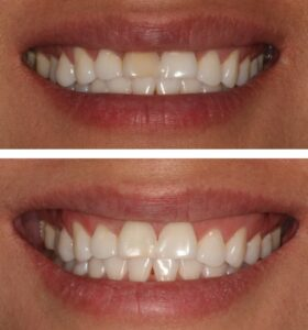 teeth whitening in park city