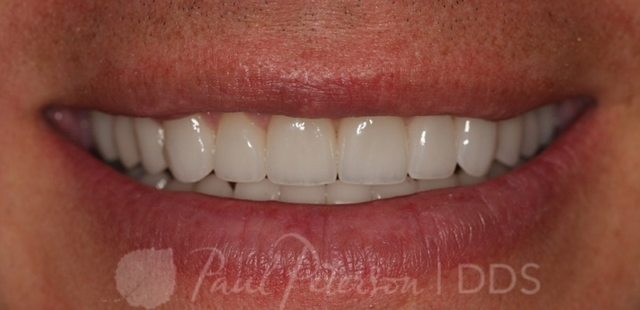 porcelain veneers after | dentist park city ut