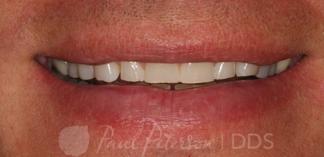 porcelain veneers before | dentist park city ut