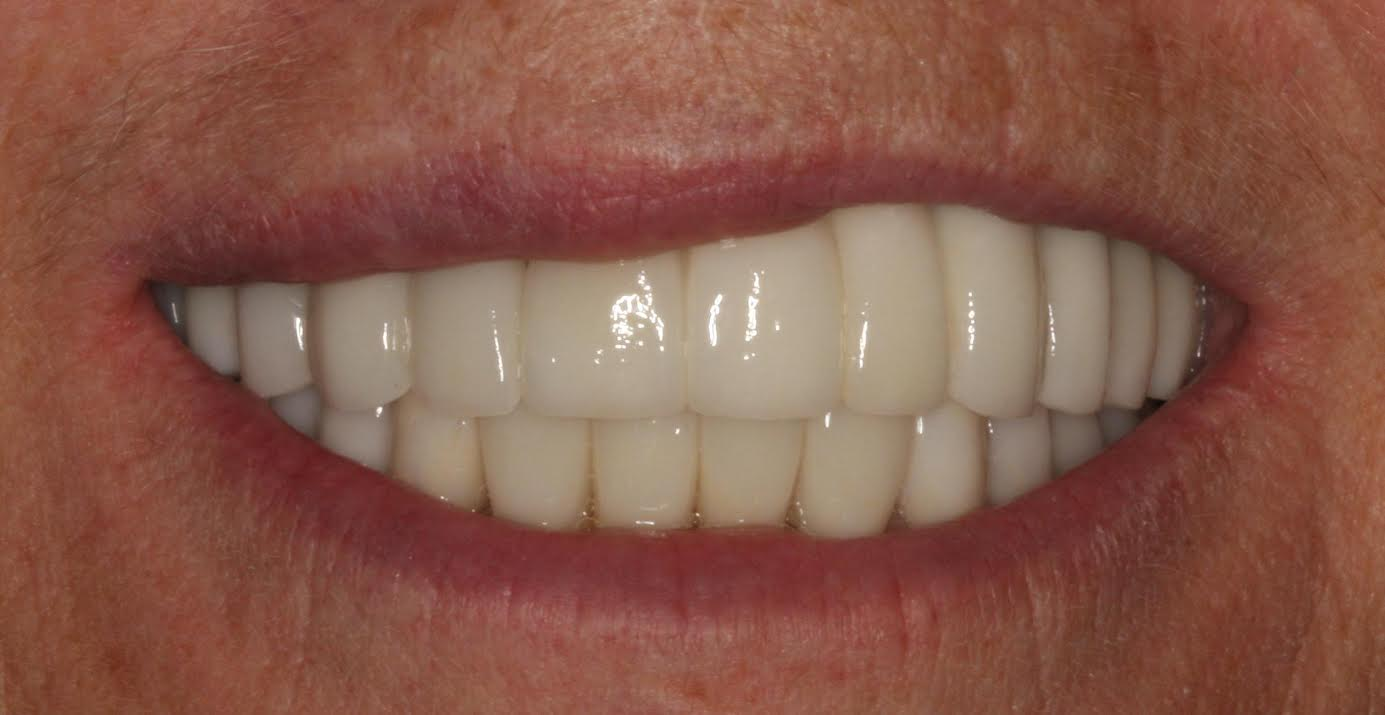 teeth reconstruction before and after in park city utah
