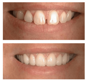 This patient of Dr. Johnsons's wanted the spaces closed between teeth but preferred to not go through braces. This dramatically improved her smile and was completed in only a few weeks.