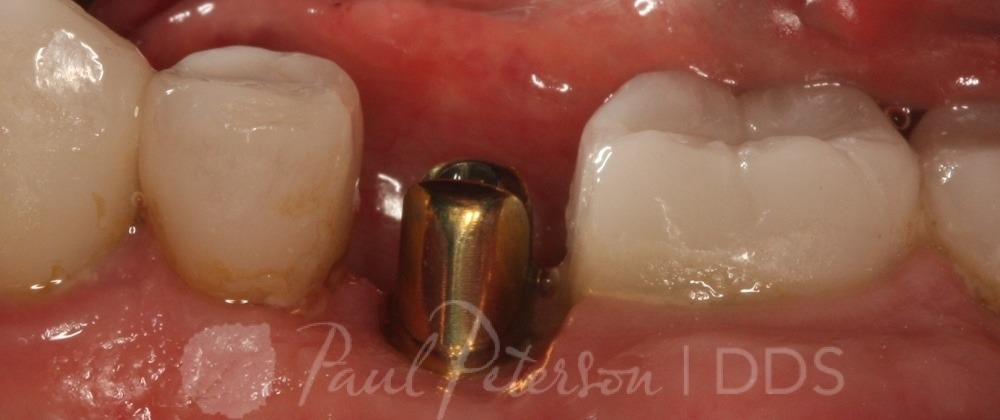 implant dentistry park city ut