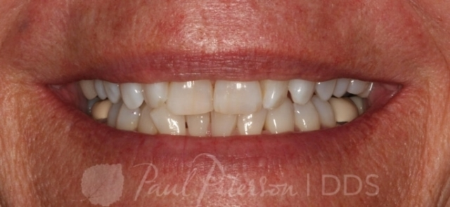 porcelain veneers before photo | park city ut dentist