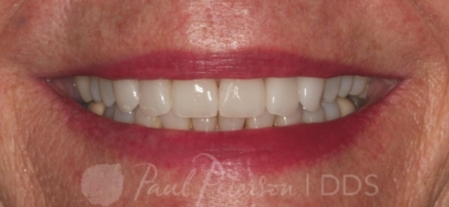 porcelain veneers after photo | park city ut dentist