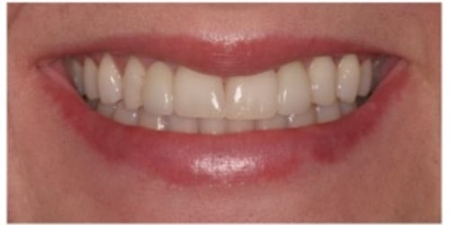 dental bridge before and after photo park city utah | Heber
