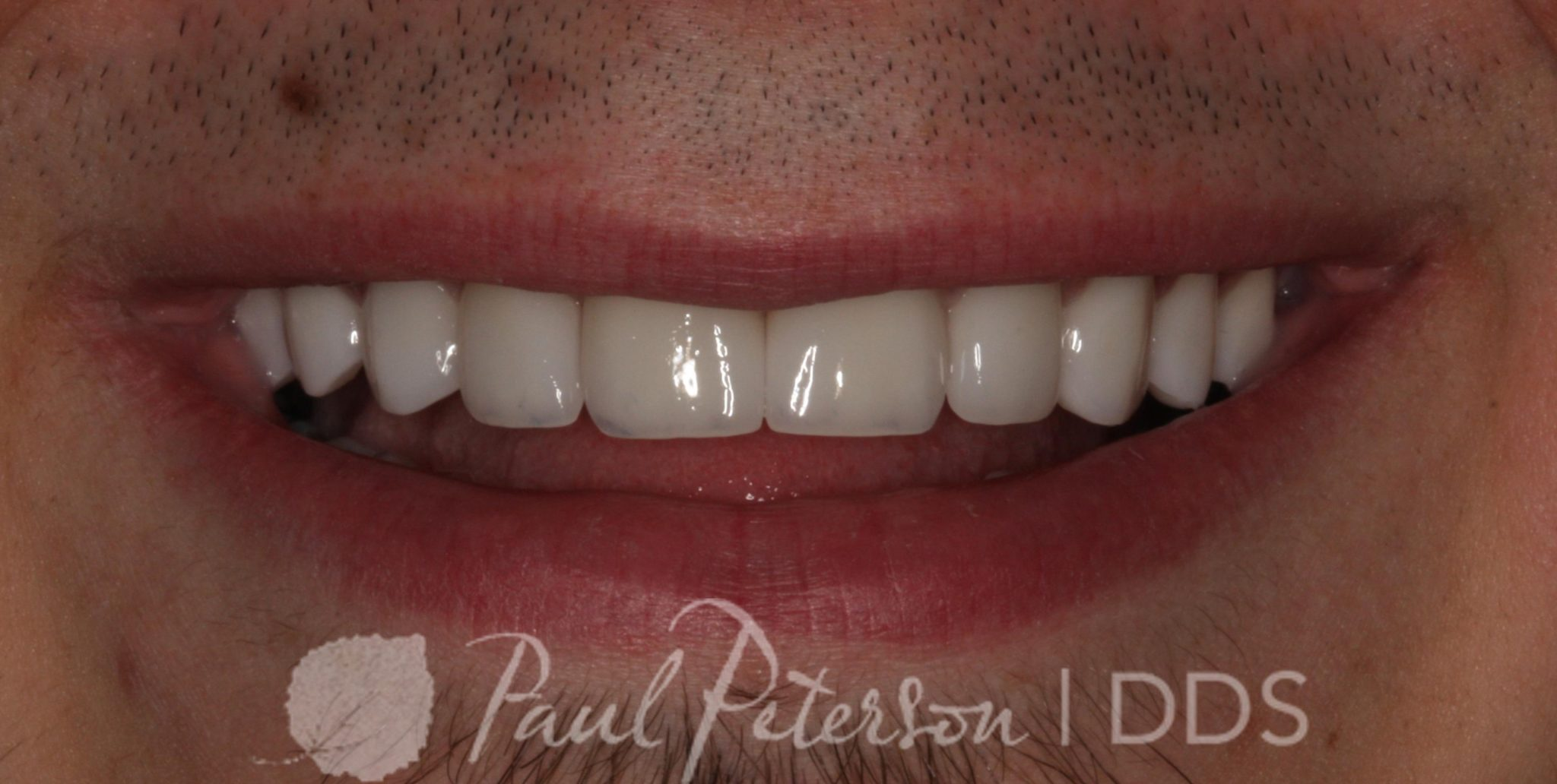 After | Advanced Cosmetic Dentistry | Park City, Utah
