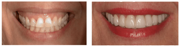 Laser Gum Contouring Before and After Photos
